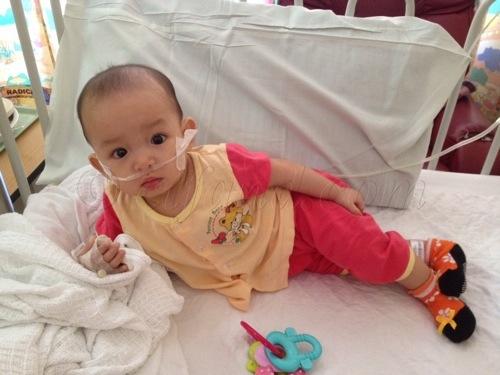 wad pediatrik