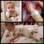 Discharge Dari Wad Pediatrik Pada 30 April 2014