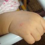 Hani Alergik Gigitan Serangga